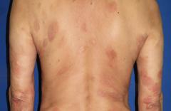 乾癬と間違いやすい疾患